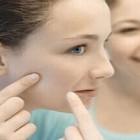 Acneea previne cancerul de piele