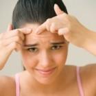 Retete homemade pentru tenul acneic
