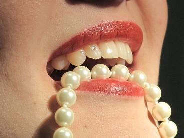 zambet cu dinti albi