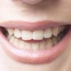 Trucuri pentru a avea dinti sanatosi