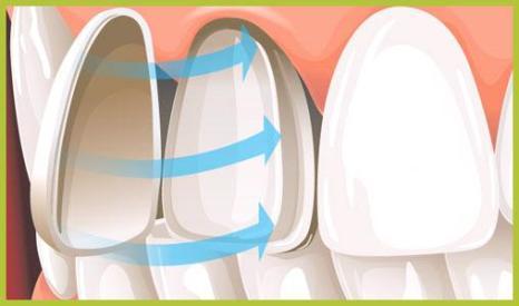 fatetarea ceramica pe dinti