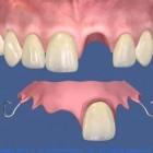 Implantul dentar si protezarea dintilor