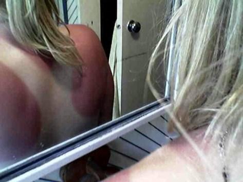 piele arsa de soare