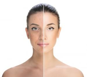 acneea tratata pas cu pas
